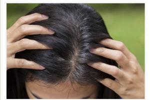 """Šta uzrokuje pojavu sijede kose i koji je napitak za njihovo """"zbogom"""""""